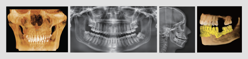 PearlFection Dentistry - 3D imaging